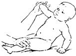 Приседание ребенка при поддержке за одну руку (ноги фиксируются)